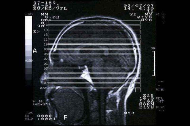 脳卒中について