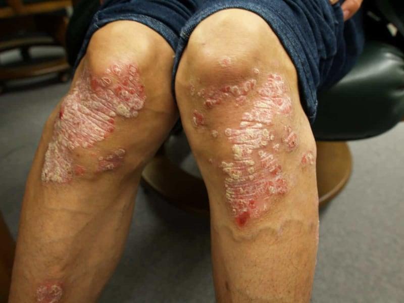 尋常性乾癬の原因と治療法